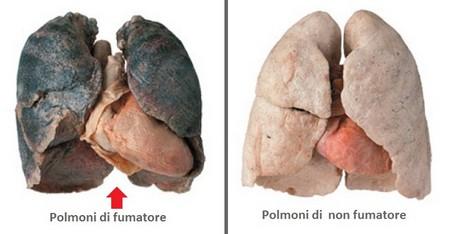 Così i polmoni si «rigenerano» smettendo di fumare | NicoZero